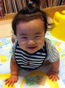 0歳6ヶ月頃、顔と腕に汗疹